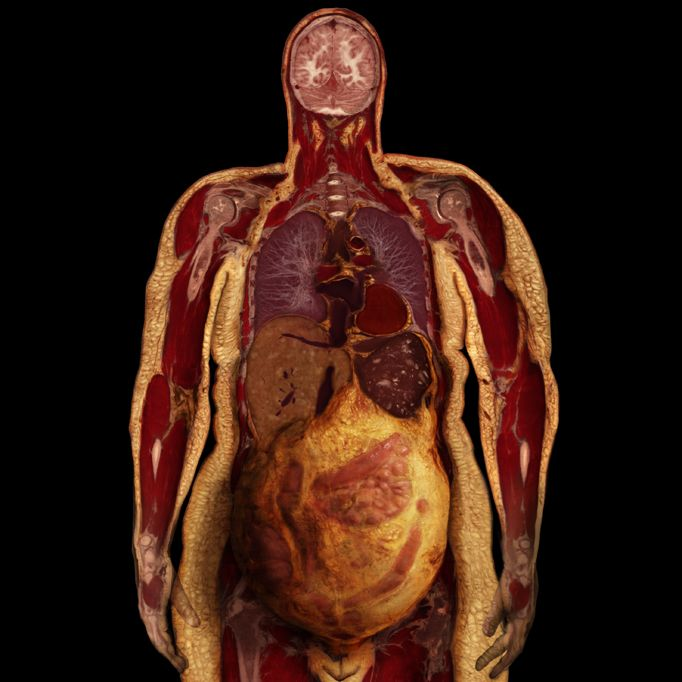 Body Voyage: A 3D Tour of a Real Human Body by Alexander Tsiaras